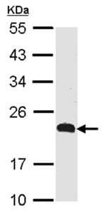 Western blot - Anti-CMTM5 antibody (ab96077)