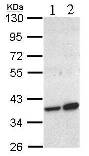 Western blot - Anti-ACMSD antibody (ab96081)
