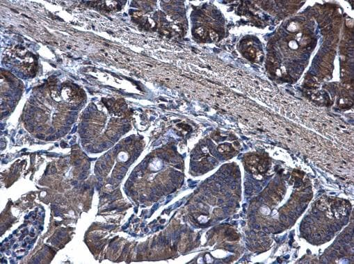 Immunohistochemistry (Formalin/PFA-fixed paraffin-embedded sections) - Anti-TRAM1 antibody (ab96106)