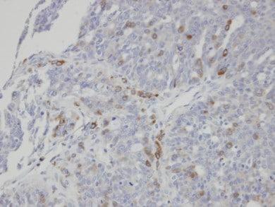 Immunohistochemistry (Formalin/PFA-fixed paraffin-embedded sections) - Anti-ST3Gal I antibody (ab96129)