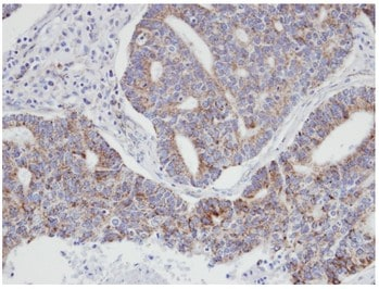 Immunohistochemistry (Formalin/PFA-fixed paraffin-embedded sections) - Anti-p21-ARC/ARPC3 antibody (ab96137)