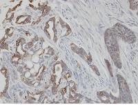 Immunohistochemistry (Formalin/PFA-fixed paraffin-embedded sections) - Anti-Cytokeratin 2e antibody (ab96145)
