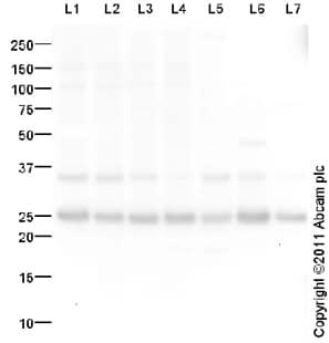 Western blot - Anti-Translin/TSN antibody (ab96155)