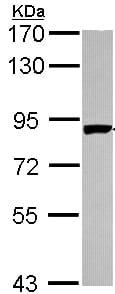 Western blot - Anti-PNPT1 antibody (ab96176)