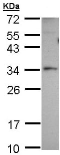 Western blot - Anti-PEX26 antibody (ab96180)