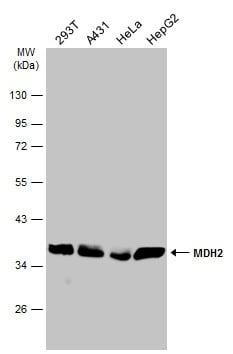 Western blot - Anti-MDH2 antibody (ab96193)