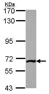 Western blot - Anti-PGM3 antibody (ab96224)