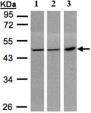 Western blot - Anti-PGD antibody (ab96225)