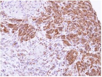 Immunohistochemistry (Formalin/PFA-fixed paraffin-embedded sections) - Anti-MTAP antibody (ab96231)