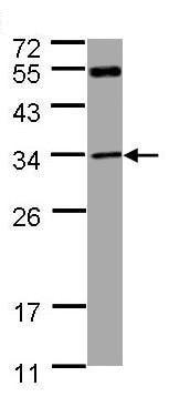 Western blot - Anti-MTAP antibody (ab96231)