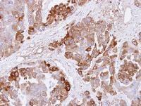 Immunohistochemistry (Formalin/PFA-fixed paraffin-embedded sections) - Anti-CBS antibody (ab96252)