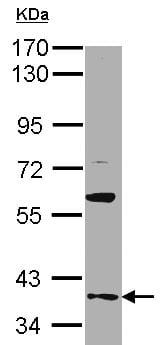 Western blot - Anti-GAS2L1 antibody (ab96260)
