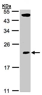 Western blot - Anti-TPRKB antibody (ab96261)