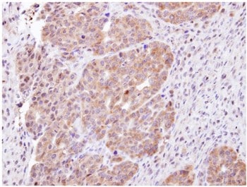 Immunohistochemistry (Formalin/PFA-fixed paraffin-embedded sections) - Anti-CHMP5 antibody (ab96273)