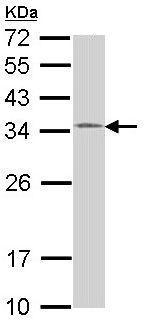 Western blot - Anti-HUS1 antibody (ab96297)