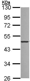 Western blot - Anti-ZNF277 antibody (ab96299)