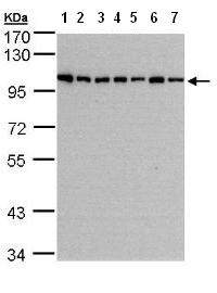 Western blot - Anti-HPS3 antibody (ab96343)