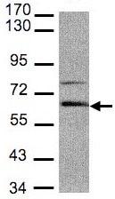 Western blot - Anti-Adracalin antibody (ab96351)