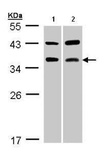 Western blot - Anti-Tartrate Resistant Acid Phosphatase antibody (ab96372)