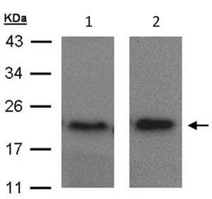 Western blot - Anti-ARF5 antibody (ab96389)