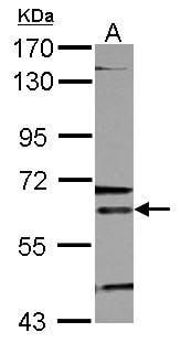 Western blot - Anti-ALAS2 + ALAS1 antibody (ab96392)