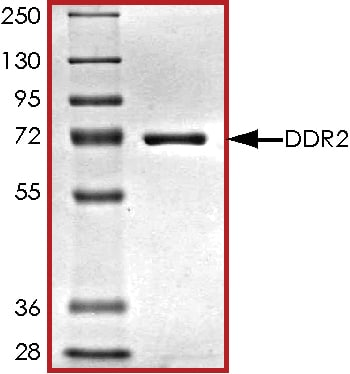 SDS-PAGE - Recombinant human DDR2 protein (ab96401) (ab96401)