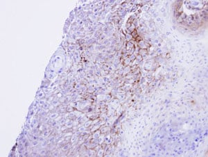 Immunohistochemistry (Formalin/PFA-fixed paraffin-embedded sections) - Anti-CACNA1S antibody (ab96413)