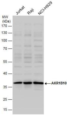 Western blot - Anti-AKR1B10 antibody (ab96417)