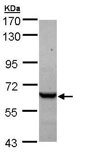 Western blot - Anti-TCP1 epsilon/CCT5 antibody (ab96445)
