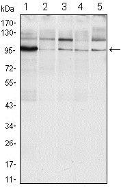 Western blot - Anti-IRE1 antibody [9F2] (ab96481)
