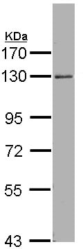 Western blot - Anti-p114RhoGEF antibody (ab96520)