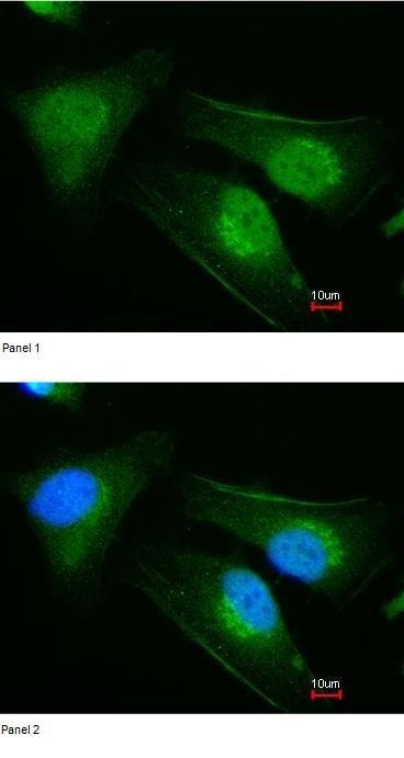 Immunocytochemistry/ Immunofluorescence - Anti-DNAJB6 antibody (ab96539)
