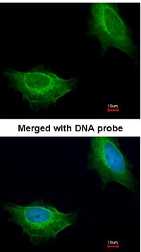 Immunocytochemistry/ Immunofluorescence - Anti-ADCK1 antibody (ab96577)