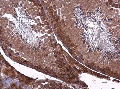 Immunohistochemistry (Formalin/PFA-fixed paraffin-embedded sections) - Anti-ZO1 tight junction protein antibody (ab96587)