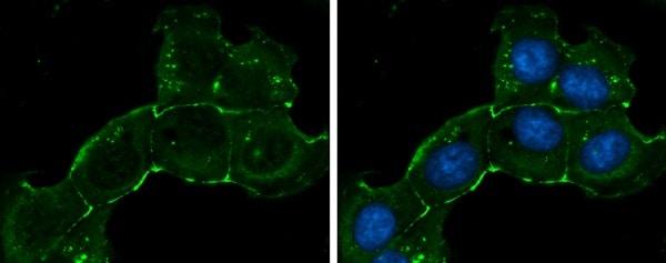 Immunocytochemistry/ Immunofluorescence - Anti-ZO1 tight junction protein antibody (ab96587)
