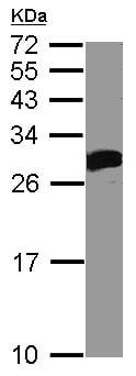 Western blot - Anti-DCK antibody (ab96599)