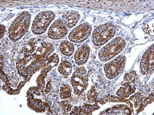 Immunohistochemistry (Formalin/PFA-fixed paraffin-embedded sections) - Anti-Citrate synthetase antibody (ab96600)