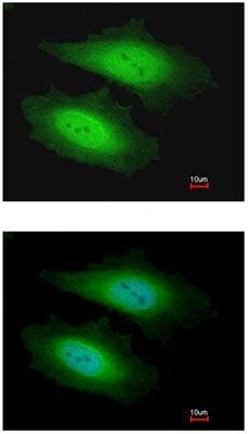 Immunocytochemistry/ Immunofluorescence - Anti-PSKH1 antibody (ab96602)