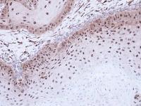 Immunohistochemistry (Formalin/PFA-fixed paraffin-embedded sections) - Anti-DMC1 antibody (ab96613)