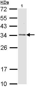 Western blot - Anti-CAPZB antibody (ab96618)