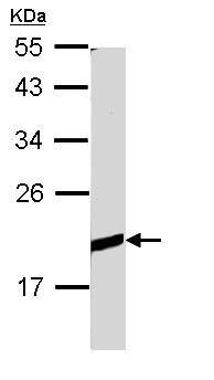 Western blot - Anti-BCL2L10 antibody (ab96625)