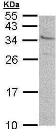 Western blot - Anti-GEM antibody (ab96663)