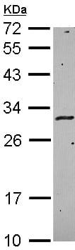 Western blot - Anti-HLA DMA antibody (ab96664)