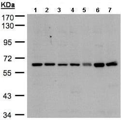 Western blot - Anti-CYP24A1 antibody (ab96691)