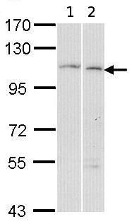 Western blot - Anti-alpha Glucosidase II antibody (ab96703)