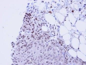 Immunohistochemistry (Formalin/PFA-fixed paraffin-embedded sections) - Anti-SSRP1 antibody (ab96704)
