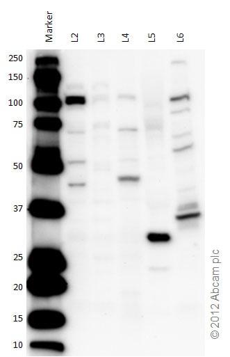 Western blot - Anti-OGT / O-Linked N-Acetylglucosamine Transferase antibody (ab96718)