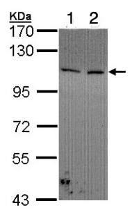 Western blot - Anti-COL1A2 antibody (ab96723)