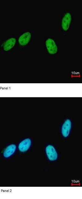 Immunocytochemistry/ Immunofluorescence - Anti-RED antibody (ab96735)