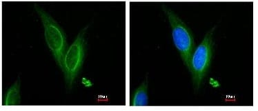 Immunocytochemistry/ Immunofluorescence - Anti-TUBA4A antibody (ab96743)